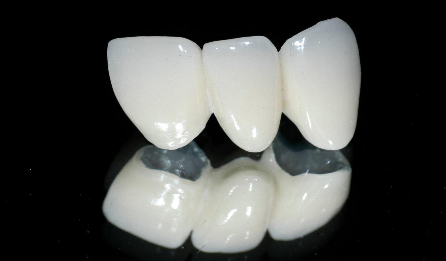 """Nên dán răng sứ hay bọc răng sứ để """"thay áo mới"""" cho răng"""