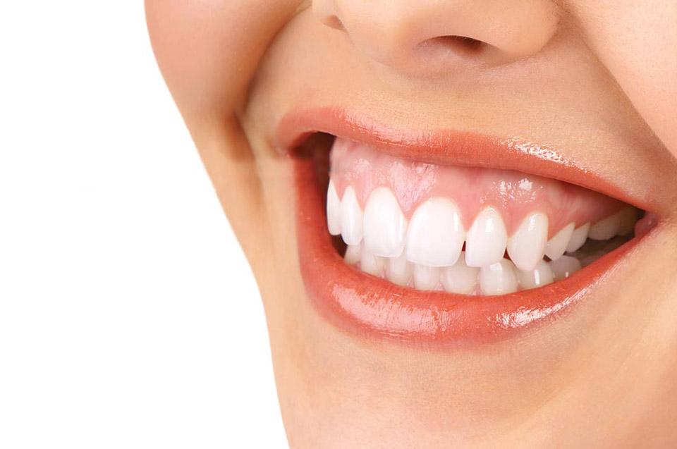 4 câu hỏi thường gặp khi điều trị cười hở lợi