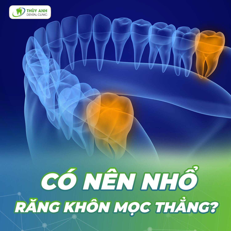 Có nên nhổ răng khôn mọc thẳng? Quy trình thực hiện như thế nào an toàn nhất?