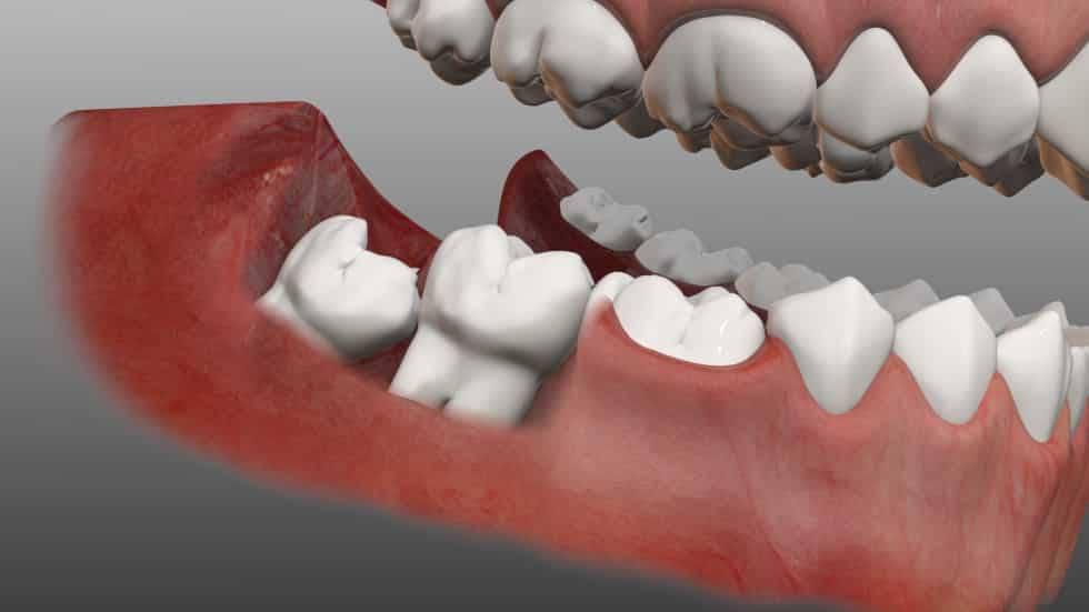Nhổ răng khôn mọc lệch 45 độ như thế nào an toàn? Nha khoa Thùy Anh