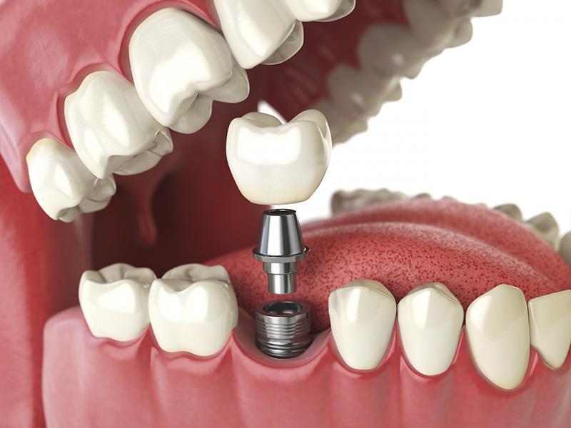 Cách trồng implant răng hàm như thế nào? Chi phí ra sao?