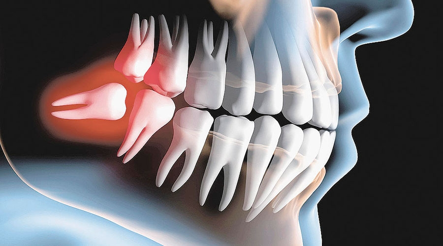 Nhổ răng khôn có nguy hiểm hay không?
