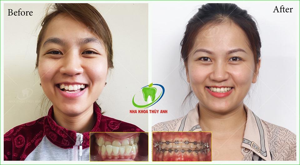 Niềng răng móm trong bao lâu? Yếu tố nào quyết định thời gian niềng răng móm?