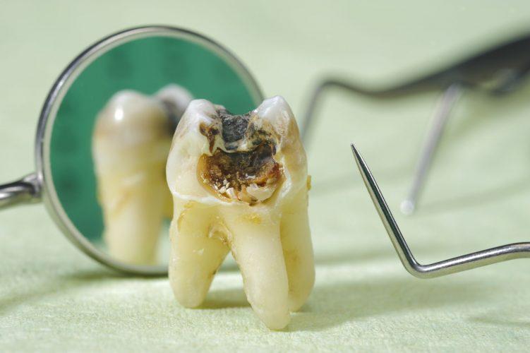 Bảng giá nhổ răng sâu chuẩn cho từng trường hợp