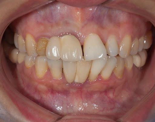 Xử lý tình trạng răng kẹ thừa thì niềng hay bọc sứ mới giải pháp tối ưu?