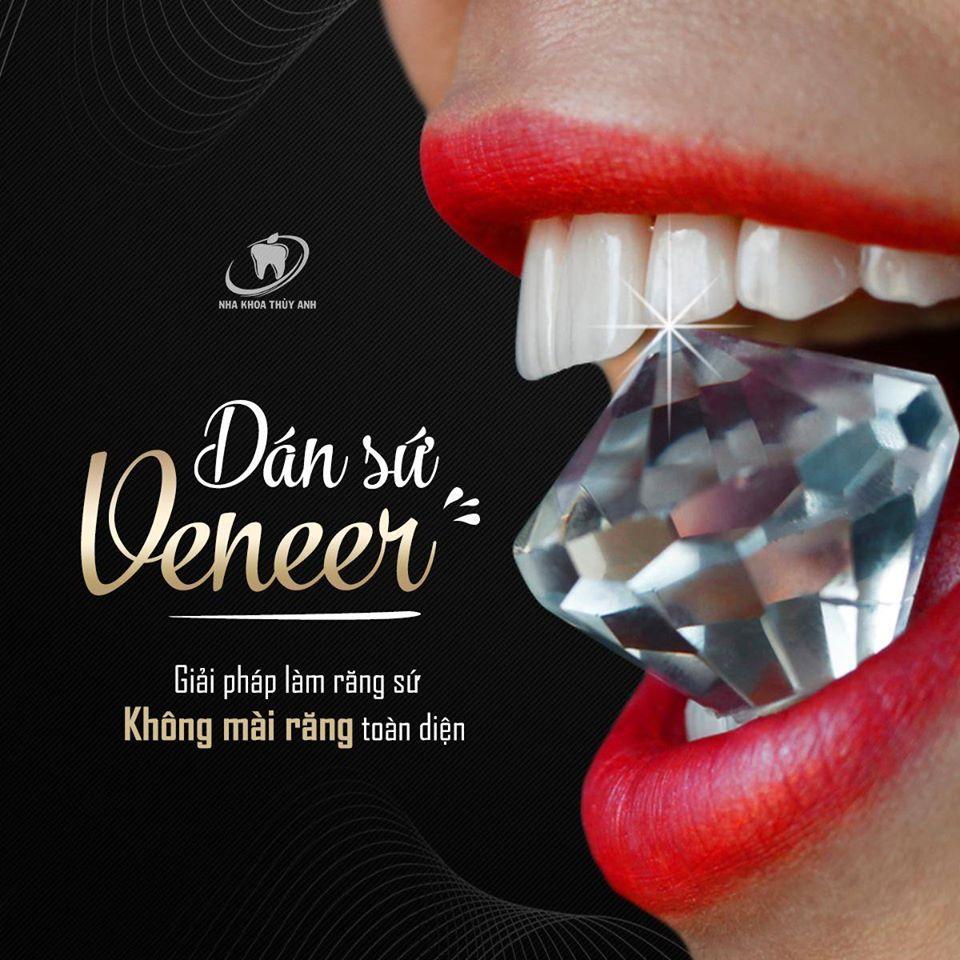 Dán răng sứ veneer – đỉnh cao công nghệ bảo tồn răng thật