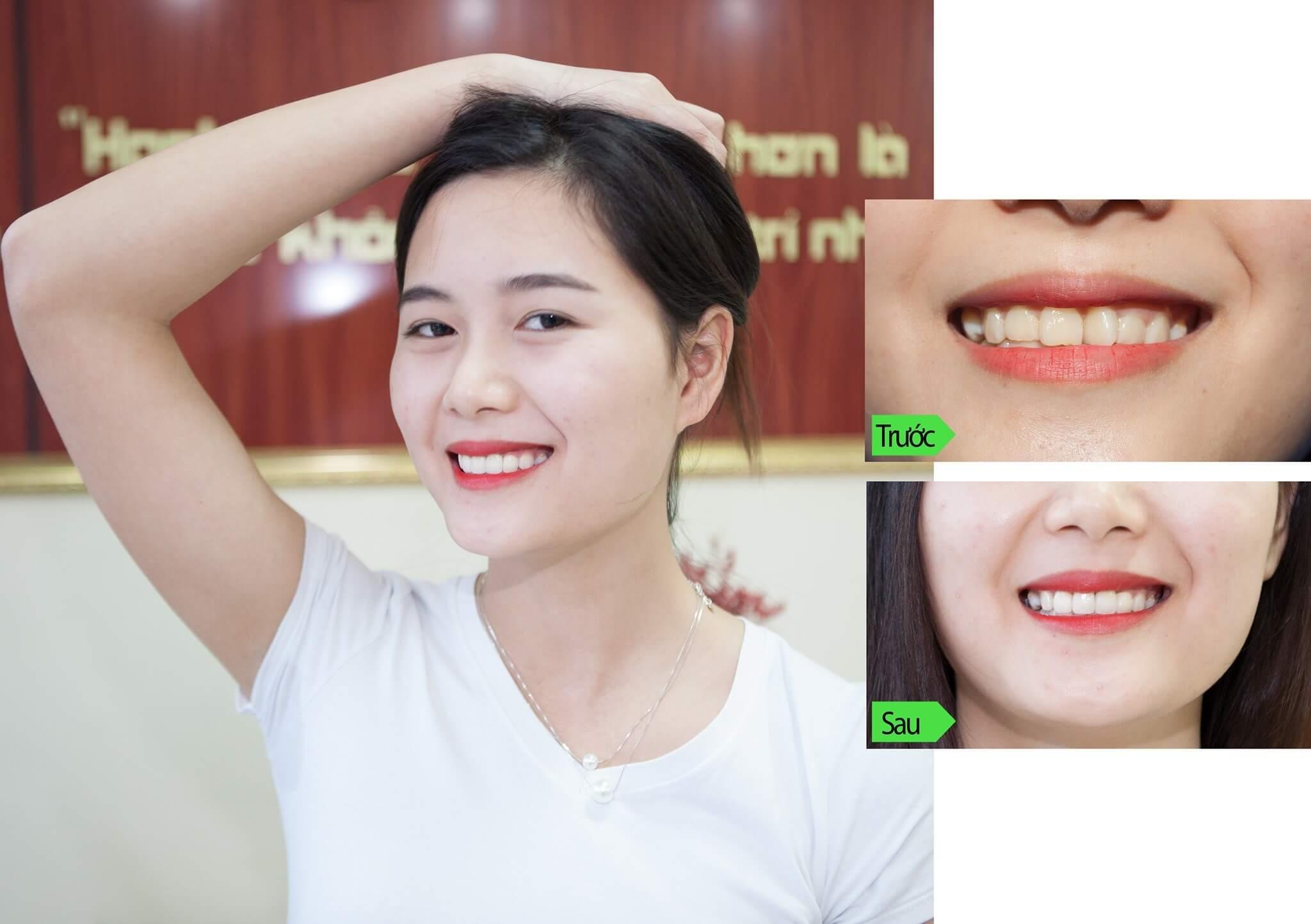7 tiêu chuẩn làm răng sứ đẹp mang tới nụ cười tự tin, tỏa sáng