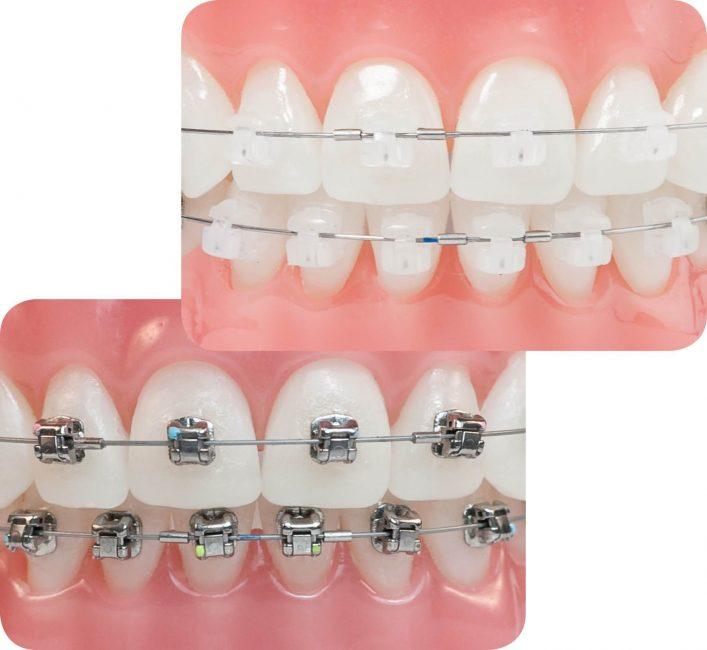 Niềng răng mắc cài kim loại có điểm gì khác biệt so với niềng răng mắc cài sứ?