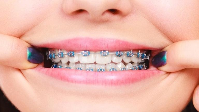 Bảng giá niềng răng chi tiết cho từng loại mắc cài
