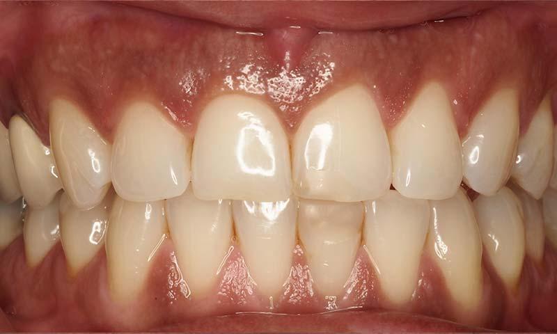 Làm răng sứ có bị đen lợi không? Nếu có xử lý như thế nào hiệu quả?