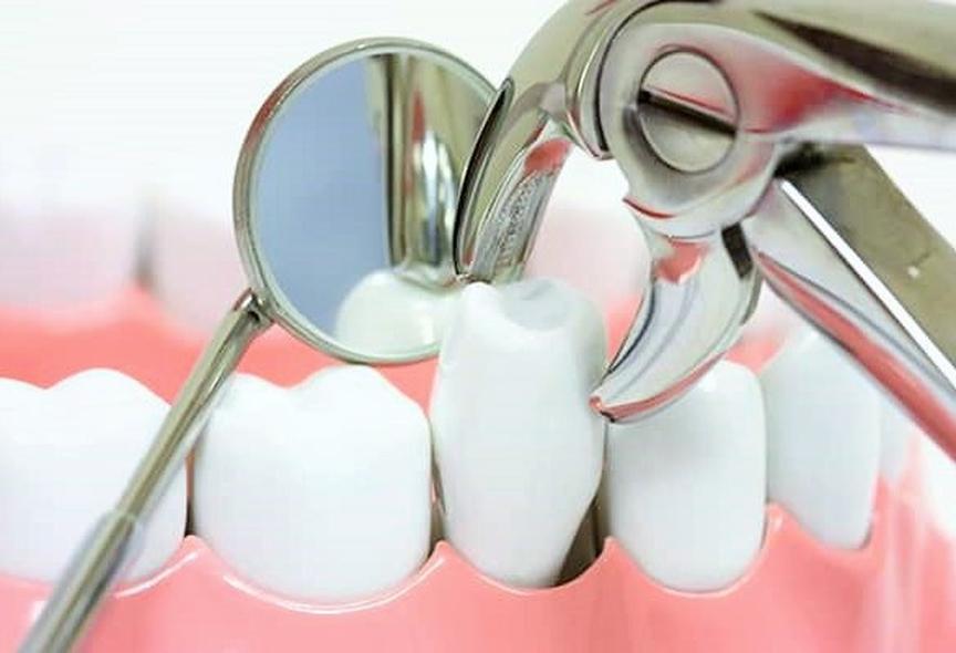 Hỏi đáp: Giá nhổ răng hàm bao nhiêu tiền?