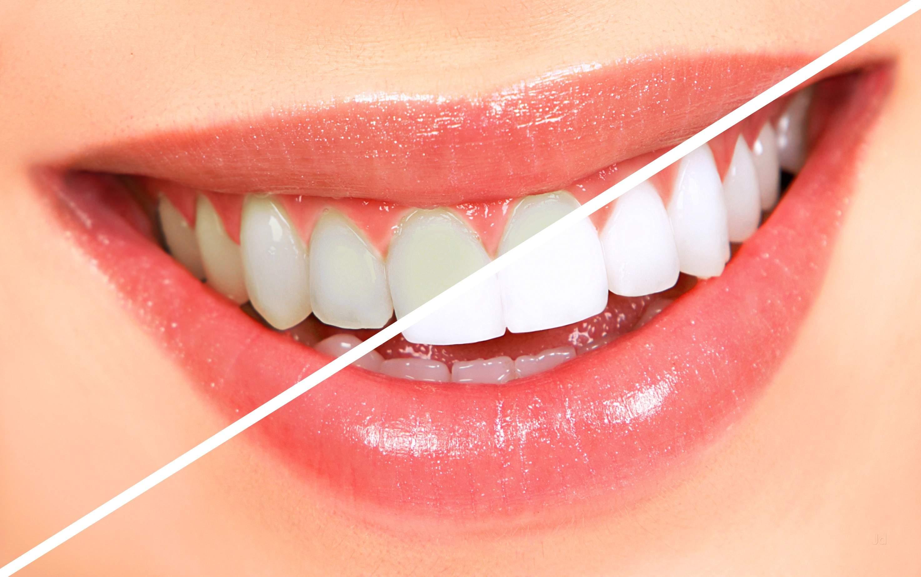 Giá tẩy trắng răng là bao nhiêu? Tẩy trắng có gây hại hay đau nhức gì không?