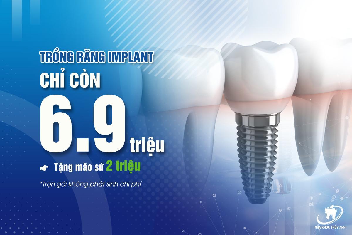 Giá trồng răng implant hợp lý, phù hợp với mọi đối tượng