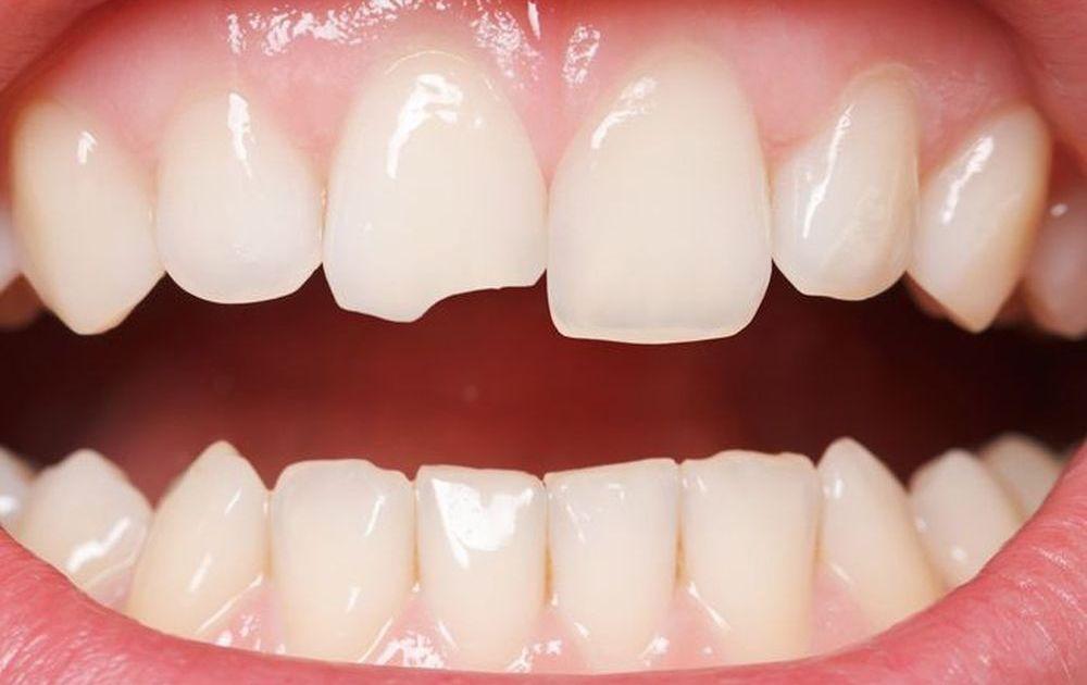 Răng mẻ nên xử lý như thế nào hiệu quả nhất?
