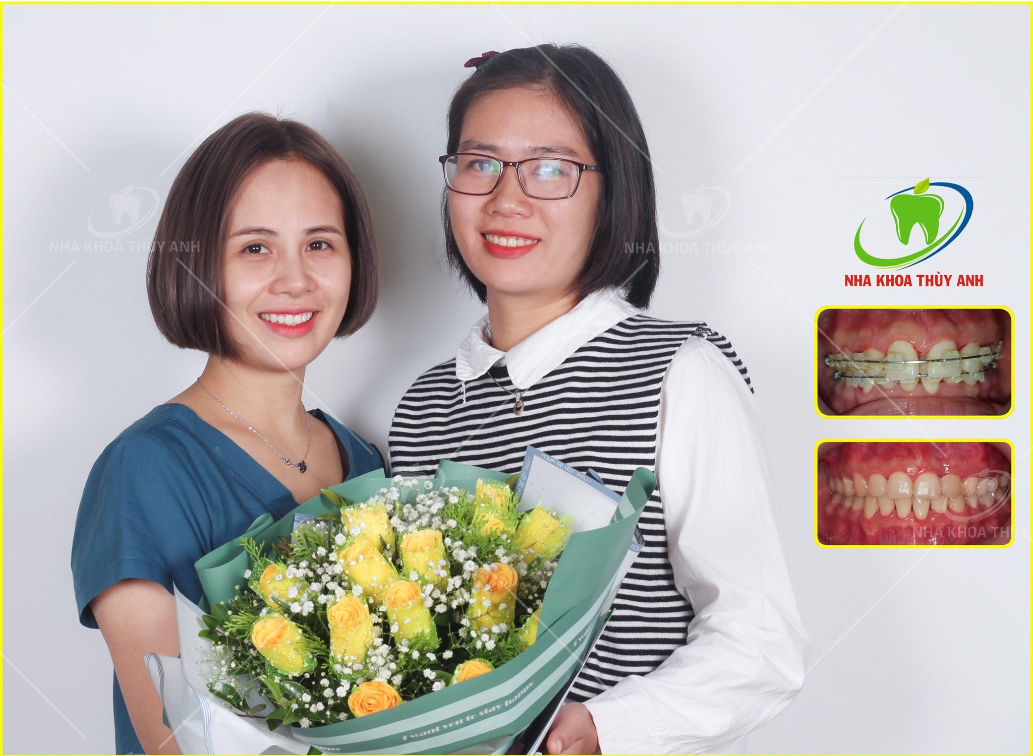 Cần chuẩn bị những gì trước khi đi tháo niềng răng – kết thúc chỉnh nha?