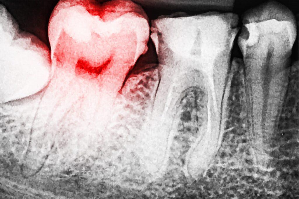 Viêm huyệt ổ răng: Nguyên nhân, triệu chứng và cách điều trị