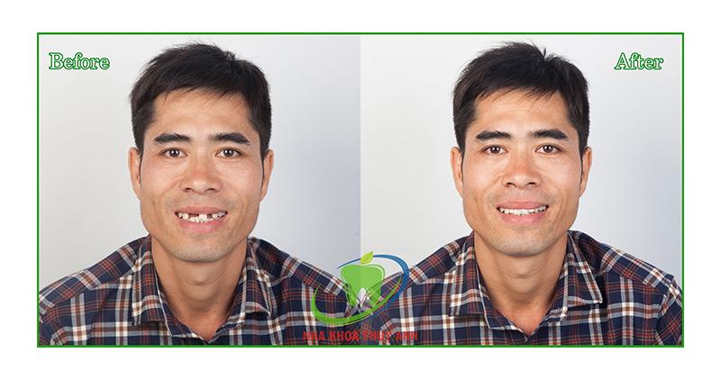 Trồng implant phục hình răng cửa, khách hàng bất ngờ vì trẻ trung, phong độ hơn