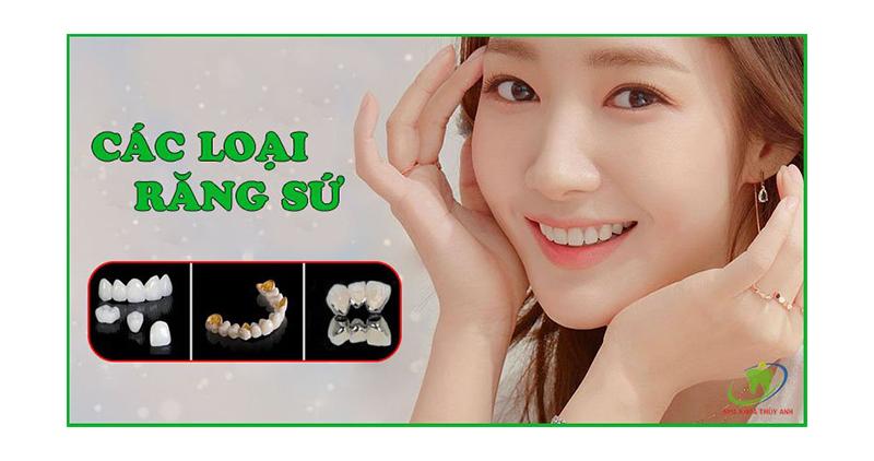 Hiện nay có những loại răng sứ thẩm mỹ nào? Nên chọn loại nào cho vùng răng cửa