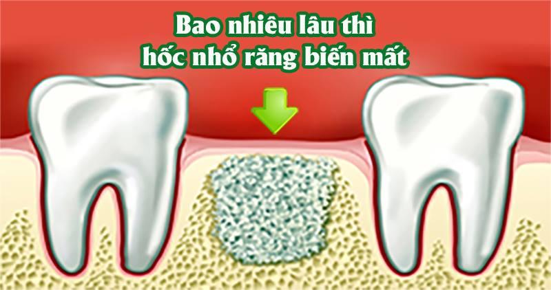 Sau nhổ răng bao lâu thì lỗ nhổ răng đầy lại – diễn biến lành thương sau nhổ răng