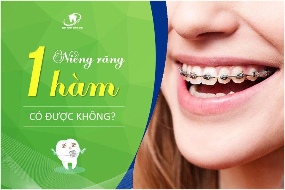 Niềng răng một hàm có được không, trường hợp nào có thể niềng 1 hàm?