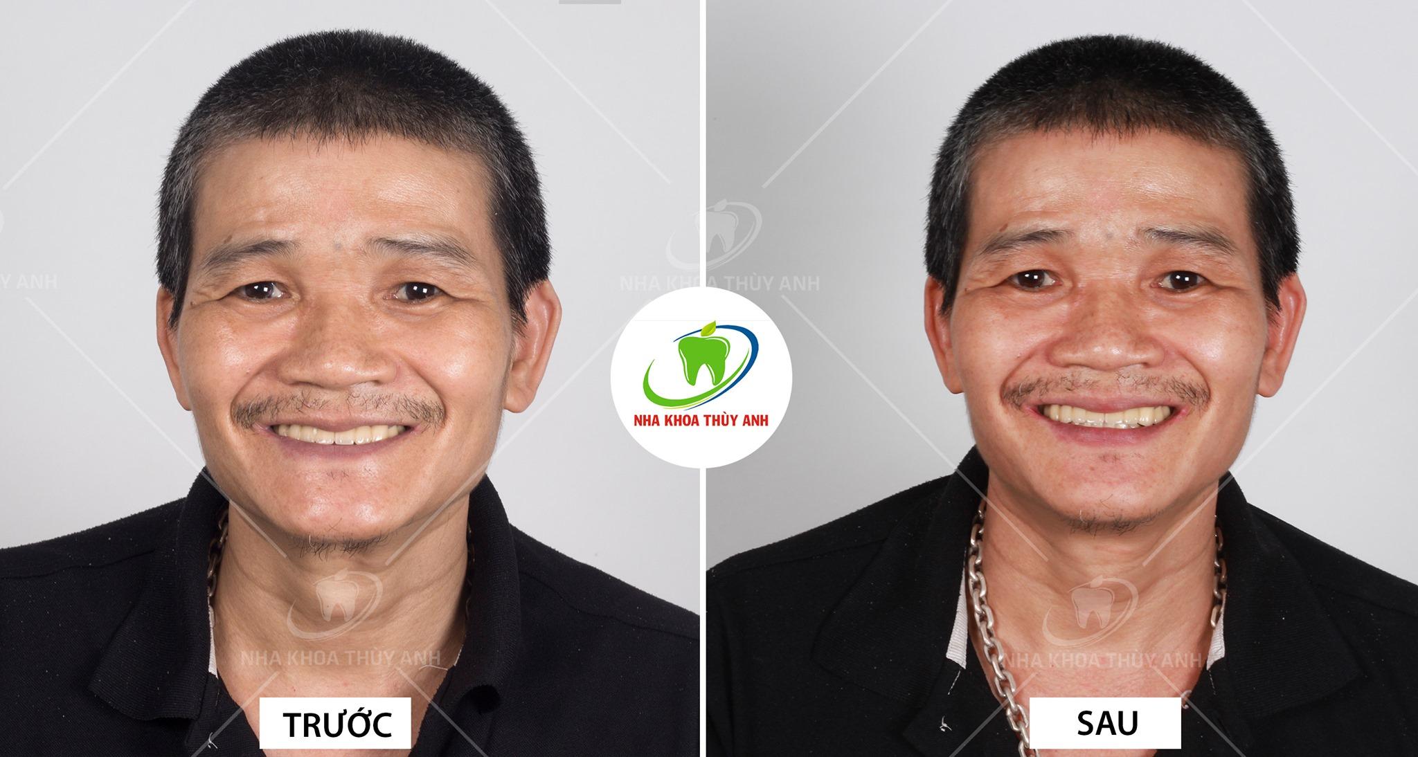 Phục hình Implant All On 4, chú Minh vui mừng tìm lại được cảm giác ăn nhai khi bị mất răng toàn hàm