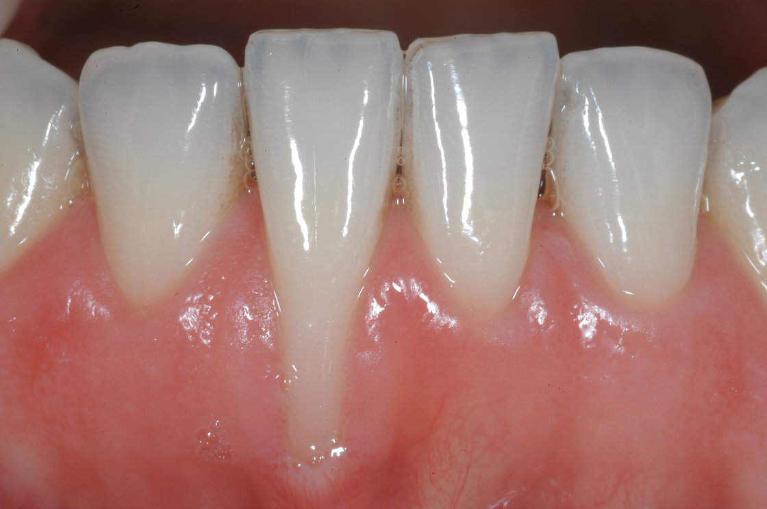 Giải đáp vấn đề: Bị tụt lợi có bọc răng sứ được không?