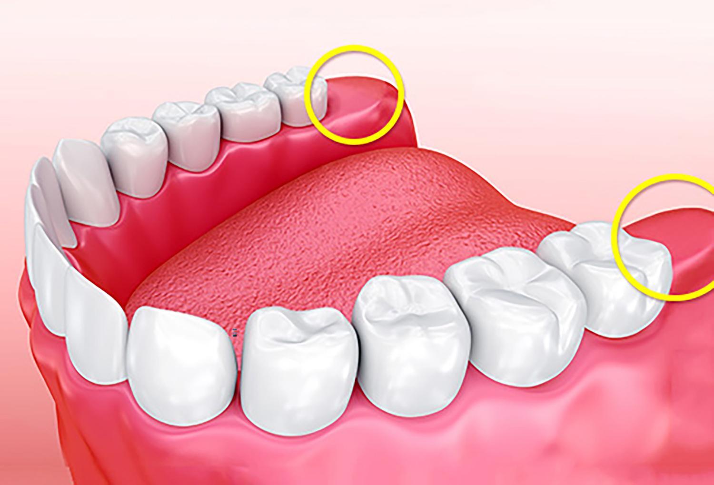 Có phải ai cũng có răng khôn không? Nha khoa Thùy Anh