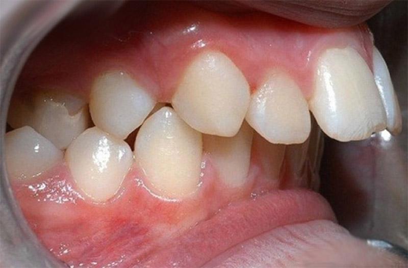 Các trường hợp không nên bọc răng sứ? Nha khoa Thùy Anh