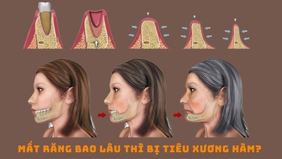 Mất răng bao lâu thì xảy ra hiện tượng tiêu xương hàm? Nha khoa Thùy Anh