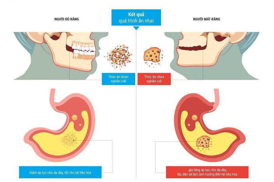 Mất răng toàn hàm ảnh hưởng tới hệ tiêu hóa như thế nào? Nha khoa Thùy Anh