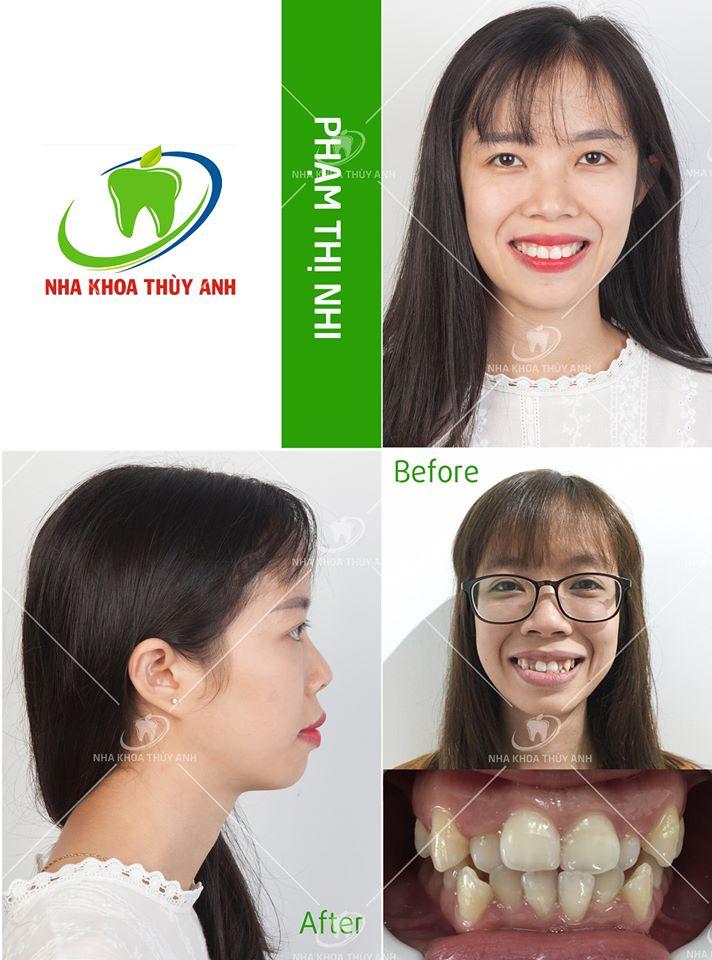 Niềng răng làm thay đổi gương mặt như thế nào? Nha khoa Thùy Anh