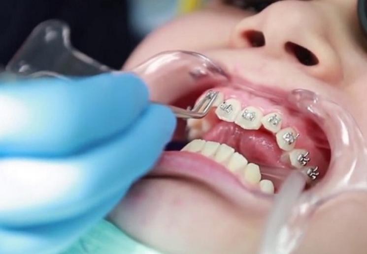 Niềng răng móm có phải nhổ răng không? Địa chỉ niềng răng móm uy tín
