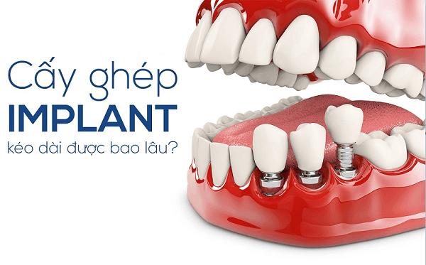 Răng implant sử dụng được bao lâu? Có đảm bảo an toàn không?
