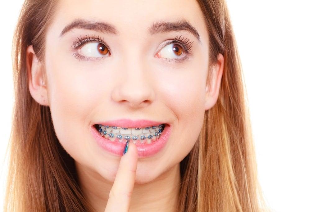 Bao nhiêu tuổi thì không niềng răng được nữa? Nha khoa Thùy Anh