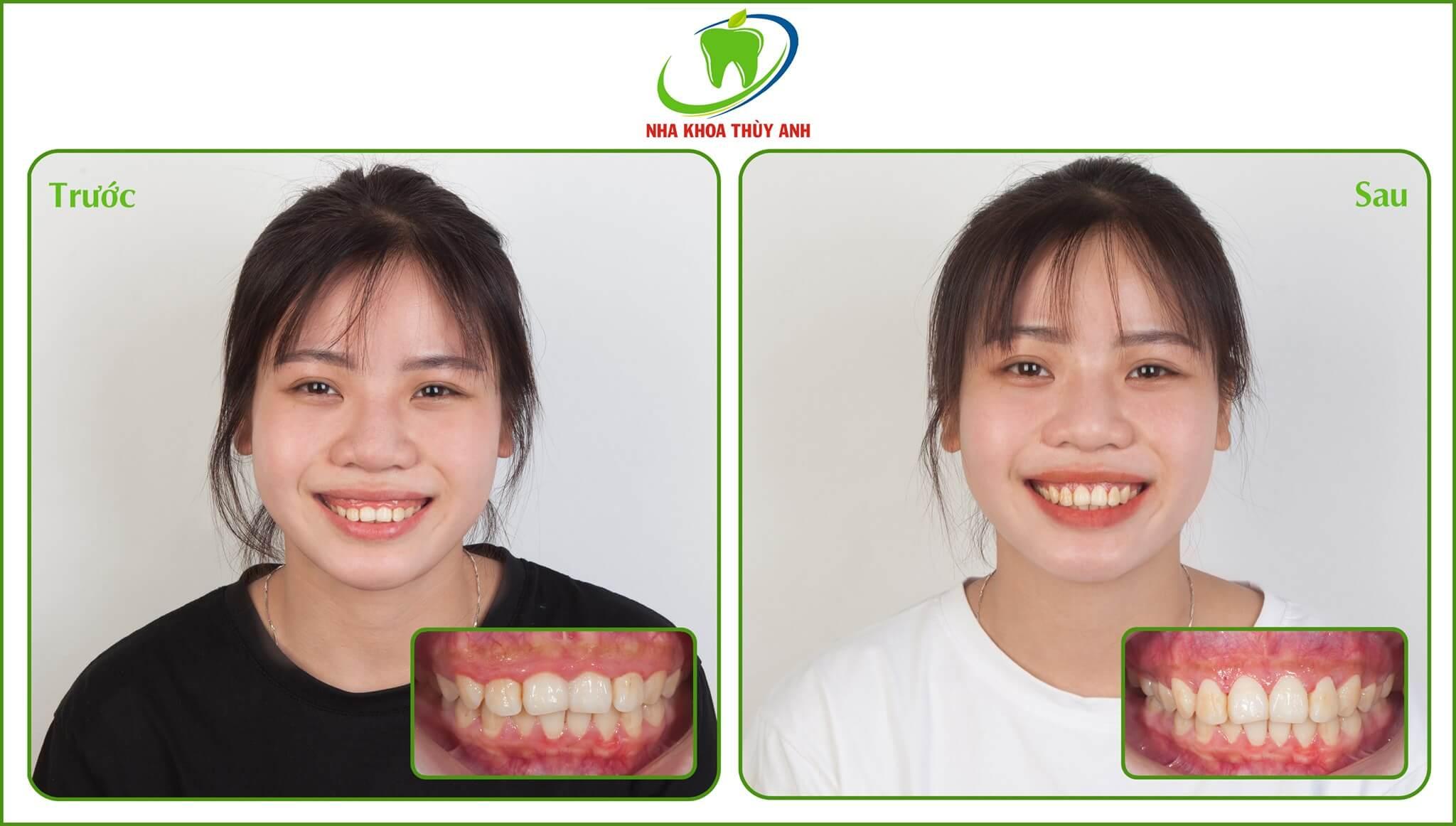 Cắt lợi, tạo hình xương ổ răng có làm yếu răng không? Nha khoa Thùy Anh