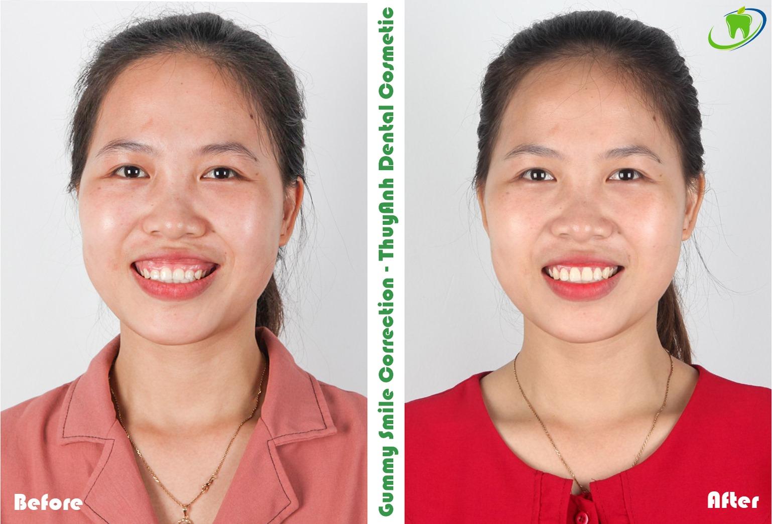 Phẫu thuật cười hở lợi có tái phát không? Nha khoa Thùy Anh
