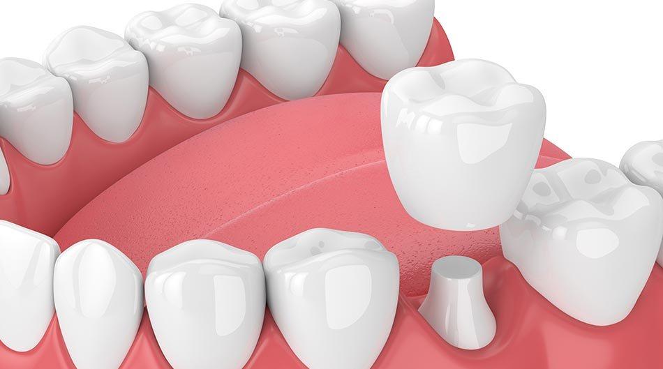 Độ tuổi nào phù hợp để bọc răng sứ thẩm mỹ? Nha khoa Thùy Anh