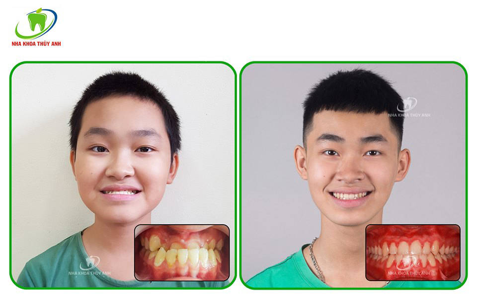 Răng thế nào bị coi là khớp cắn ngược? Nha khoa Thùy Anh