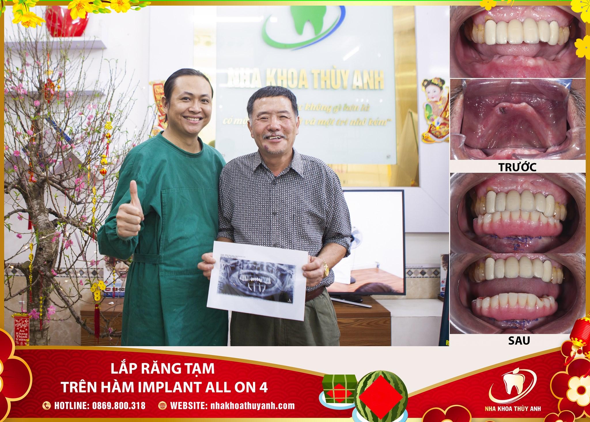 Bỏ hàm tháo lắp, bác Luân ăn nhai ngon miệng, giao tiếp tự tin hơn nhờ trồng răng Implant