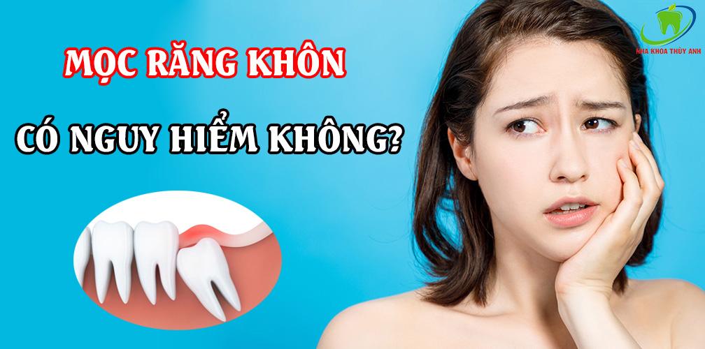 Mọc răng khôn có nguy hiểm không? Các biểu hiện có thể gặp khi mọc răng khôn.