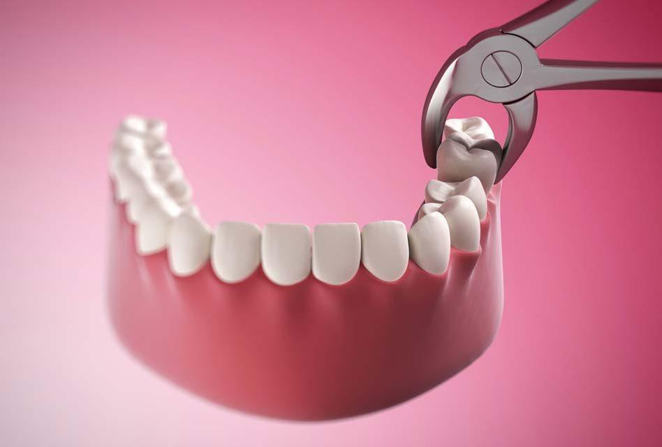Tại sao niềng răng cần nhổ răng khôn? Nha khoa Thùy Anh