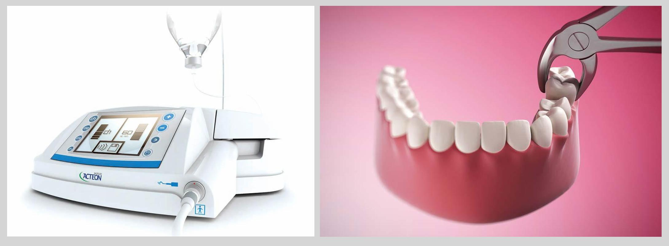 Nhổ răng khôn siêu âm khác nhổ truyền thống chỗ nào? Nha khoa Thùy Anh