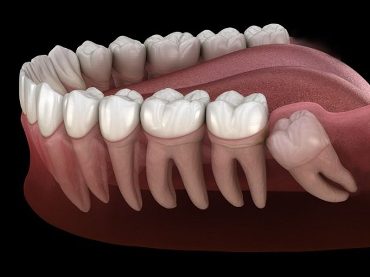 Răng khôn mọc lệch ngầm dấu hiệu và biến chứng cần nắm rõ? Nha khoa Thùy Anh