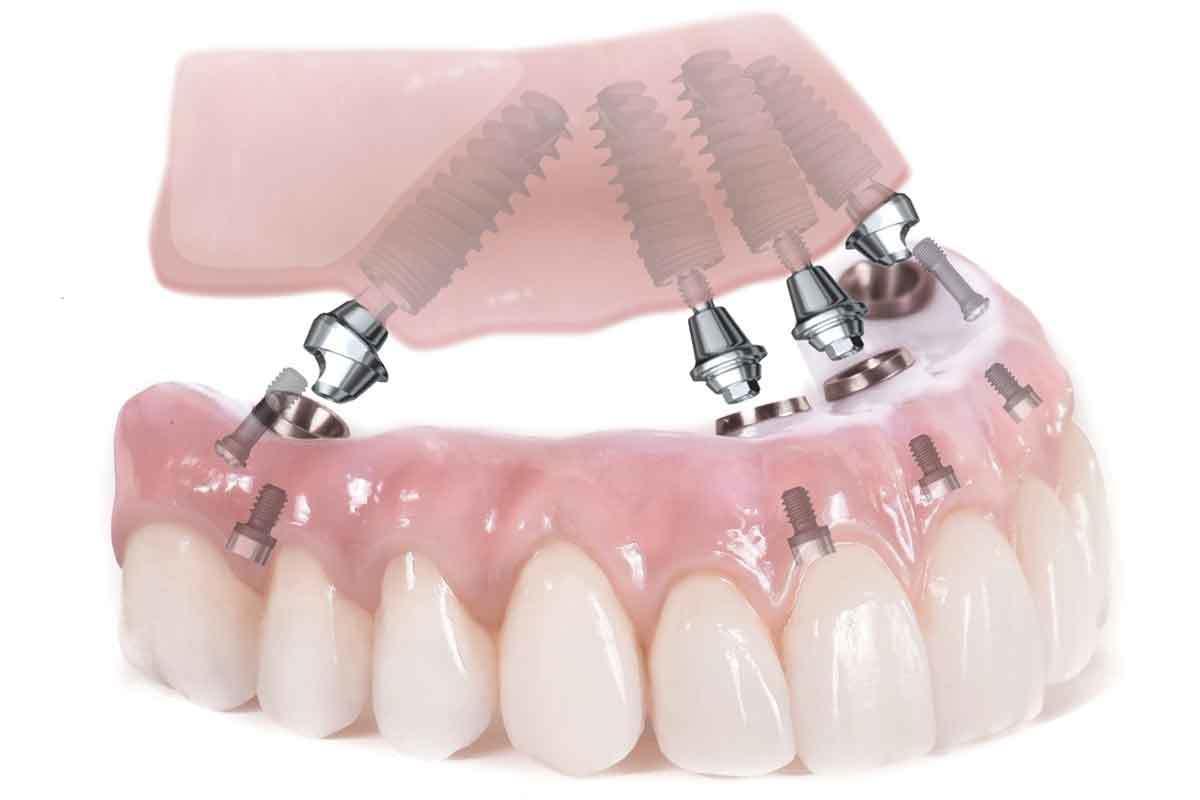 Trồng răng giả nguyên hàm bằng implant an toàn, tiết kiệm tới 72 triệu đồng