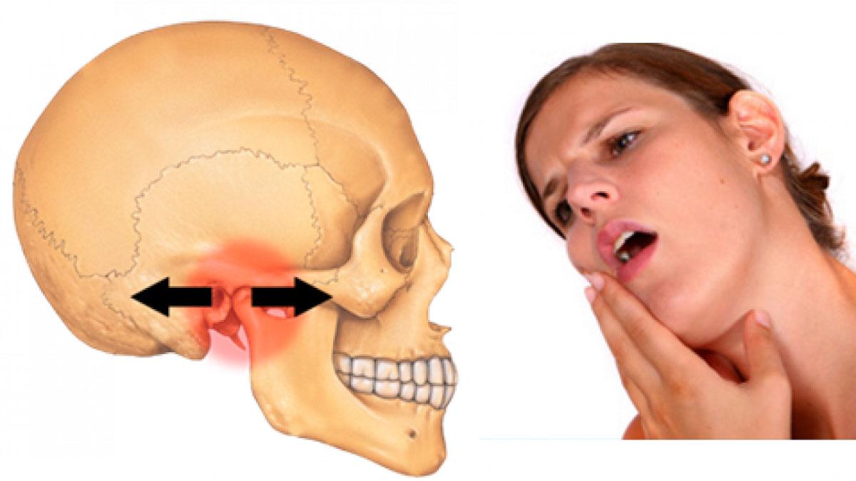 Bệnh lý viêm khớp thái dương hàm: Nguyên nhân, triệu chứng và cách điều trị