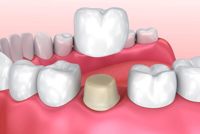 Mão răng sứ là gì? Tác dụng là gì? Giá bọc mão răng sứ là bao nhiêu?