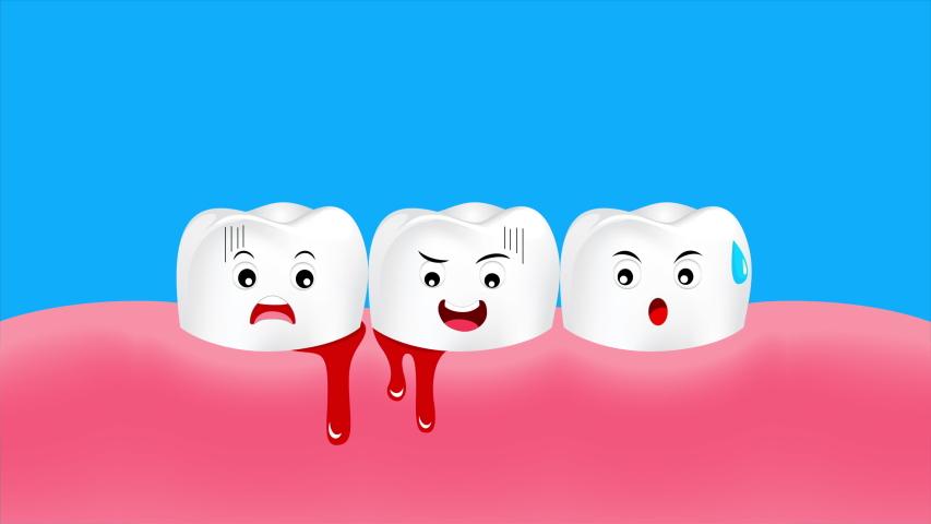 Chảy máu chân răng: Nguyên nhân và cách khắc phục hiệu quả