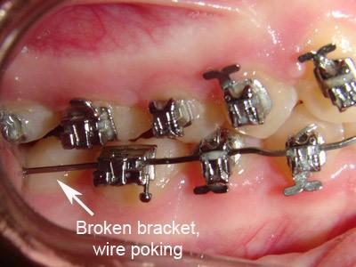 Niềng răng bị chảy máu lợi phải làm sao? Nha khoa Thùy Anh