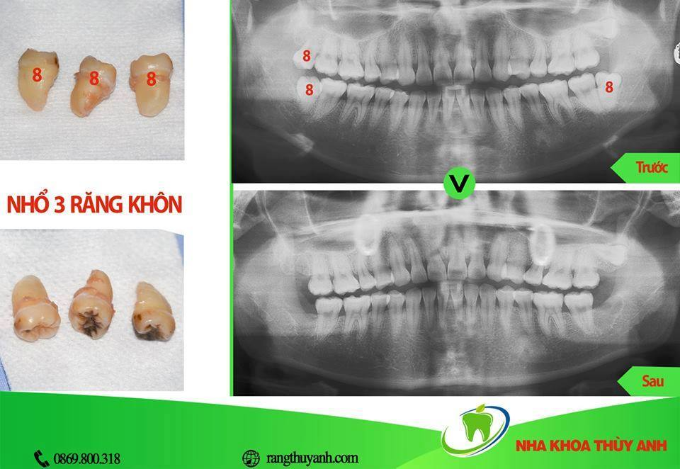 Chụp X – quang nhổ răng khôn và những điều cần biết – nha khoa Thùy Anh
