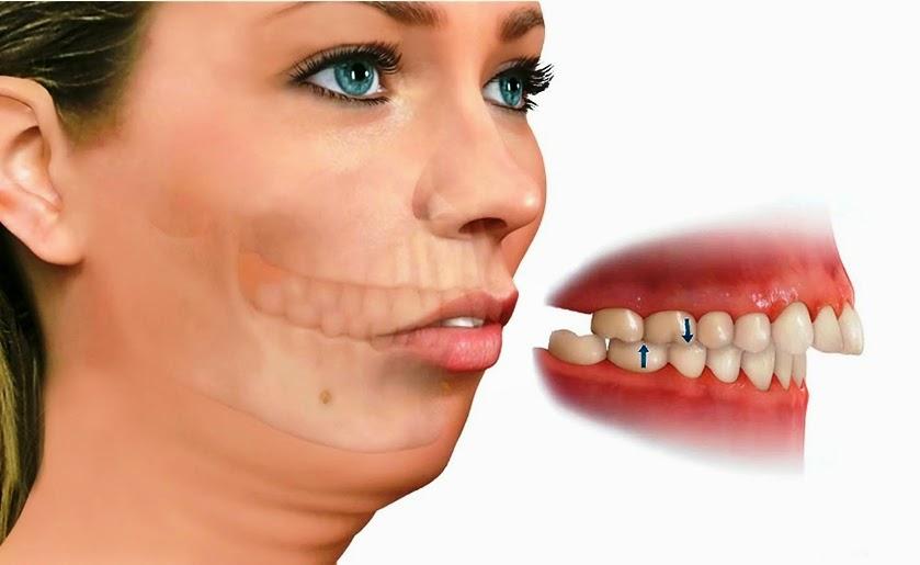 Hô móm nên niềng răng hay phẫu thuật để có kết quả tốt nhất?